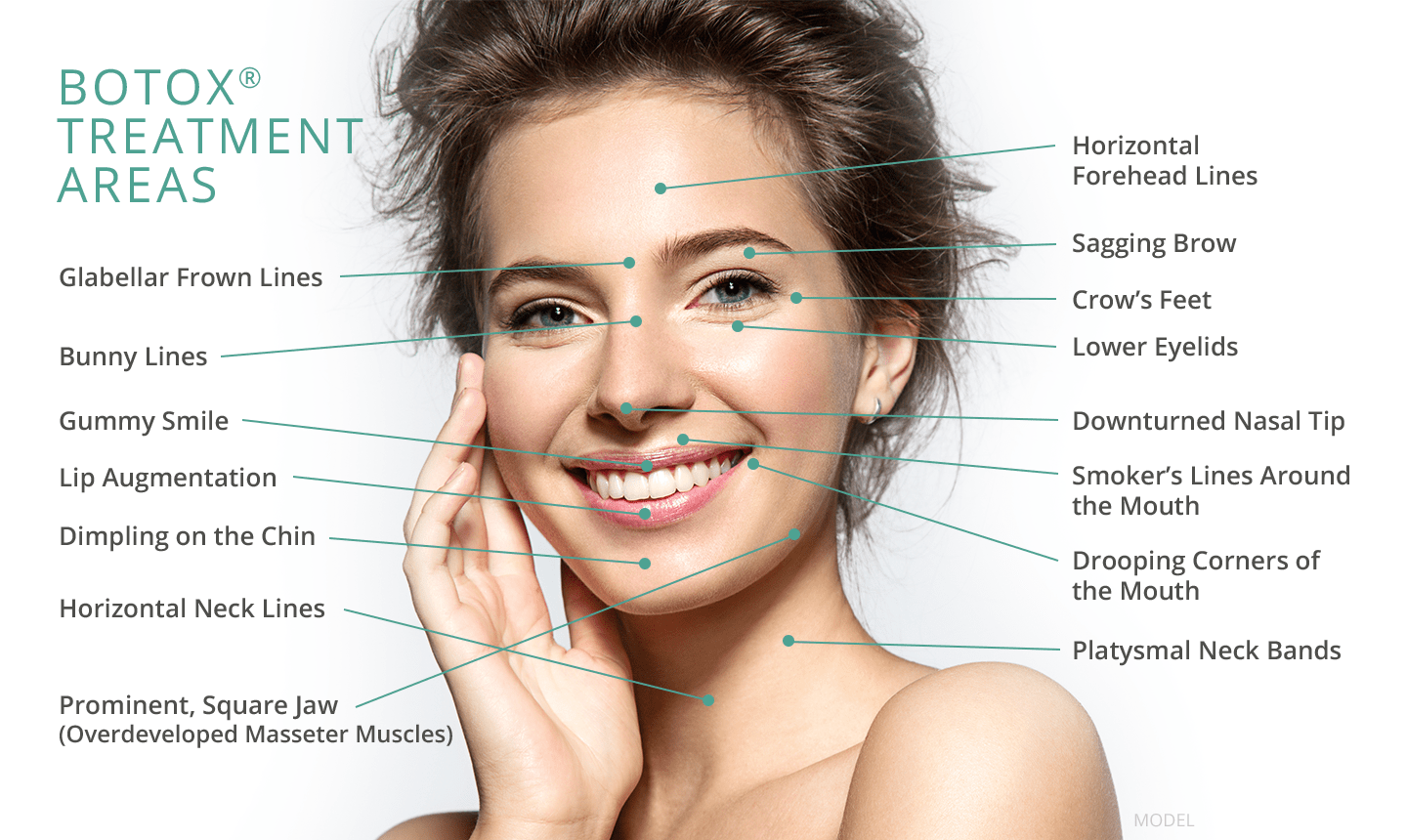 botox injections price in india