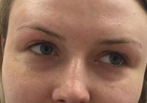 dermal fillers eyes before and after